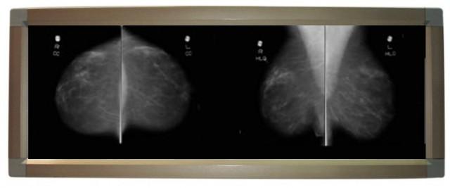 LED Mammography Viewbox