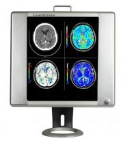 Mobile LED X-Ray Viewbox Illuminator with Grip & Stand